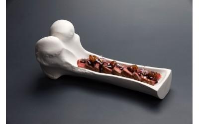 Grosser Oberschenkelknochen